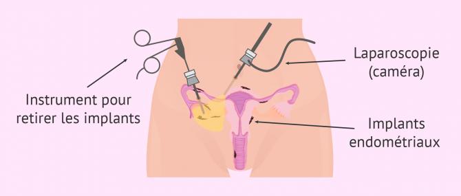 Imagen: endometriose laparoscopie