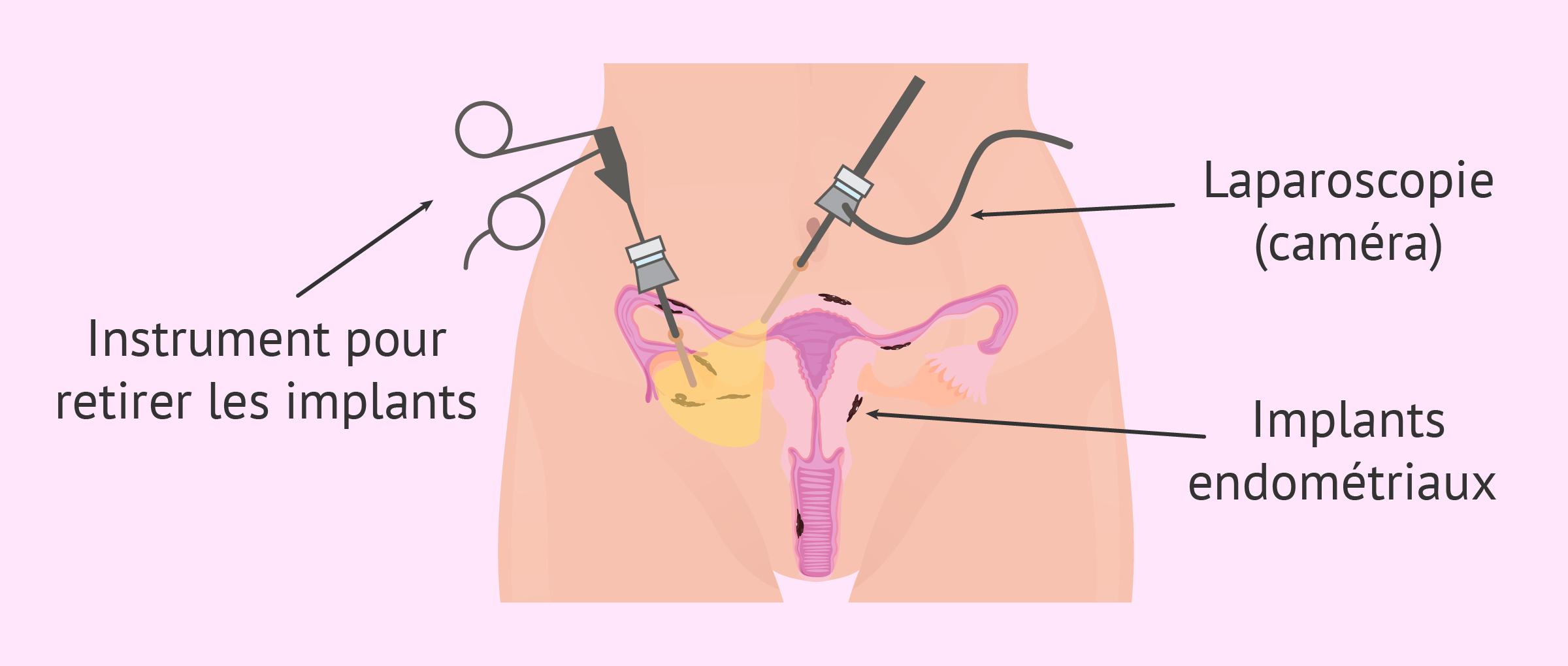 Chirurgie pour traiter l'endométriose